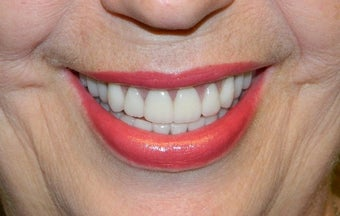 65-74 year old woman treated for ClearChoice Dental Implants after 1535028