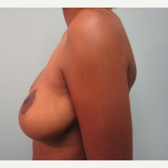 Breast Implant Removal combined with a breast lift in 43 year old patient before 1975742