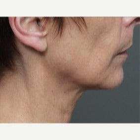 45-54 year old woman treated with Ultherapy after 2344873