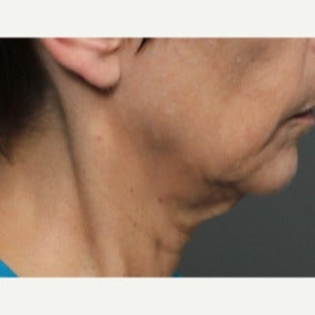 45-54 year old woman treated with Ultherapy before 2344873