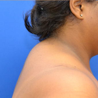 Buffalo Hump Reduction with Laser Liposuction before 3804381