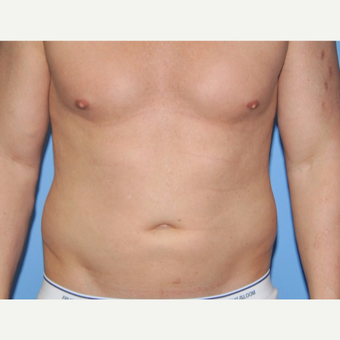 35-44 year old man treated with Liposuction before 3258641