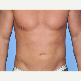 35-44 year old man treated with Liposuction after 3258641