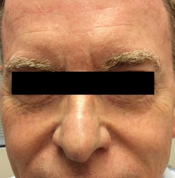 65 year old man treated with Halo Laser before 3210871