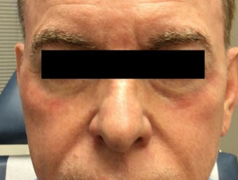 65 year old man treated with Halo Laser after 3210871