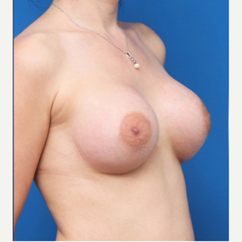 25-34 year old woman treated with Breast Augmentation after 3167722