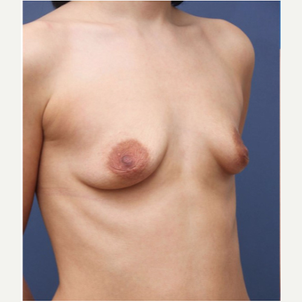 25-34 year old woman treated with Breast Augmentation before 3167722