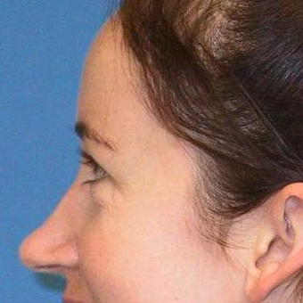 25-34 year old woman treated with Rhinoplasty before 3497234