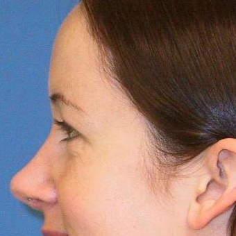 25-34 year old woman treated with Rhinoplasty after 3497234