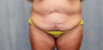 45-54 year old woman treated with Tummy Tuck before 2293193