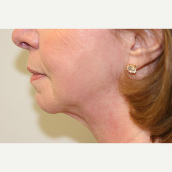 65-74 year old woman treated with Vaser Liposuction to the Submental area after 3032033