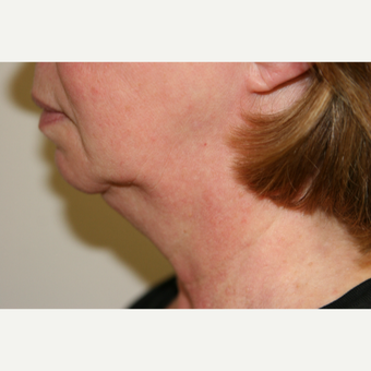 65-74 year old woman treated with Vaser Liposuction to the Submental area before 3032033