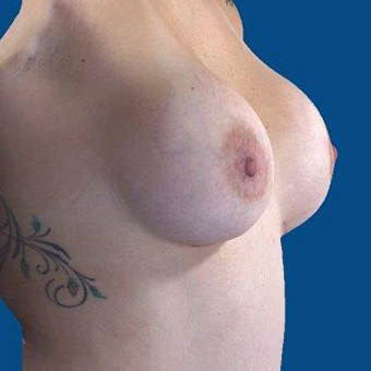 25-34 year old woman treated with Breast Augmentation after 3767902