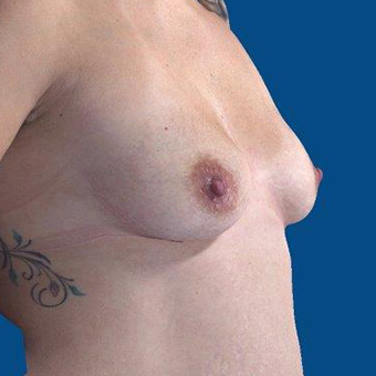 25-34 year old woman treated with Breast Augmentation before 3767902