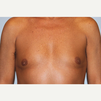 55-64 year old man treated with Male Breast Reduction after 3569487