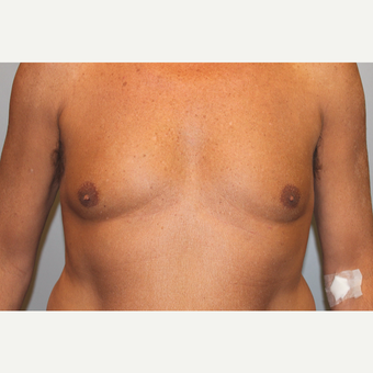 55-64 year old man treated with Male Breast Reduction before 3569487