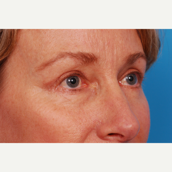 55-64 year old woman treated with Eyelid Surgery after 2995462
