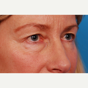 55-64 year old woman treated with Eyelid Surgery before 2995462