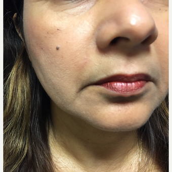 54 year old woman treated with Mole Removal