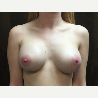 25-34 year old woman treated with Breast Augmentation after 3049452