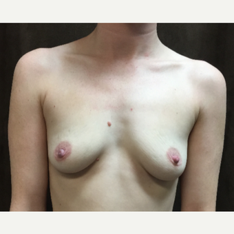 25-34 year old woman treated with Breast Augmentation before 3049452