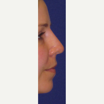 "Non Surgical ""Liquid"" Rhinoplasty after 3202314"