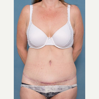 45-54 year old woman treated with Tummy Tuck after 3442425