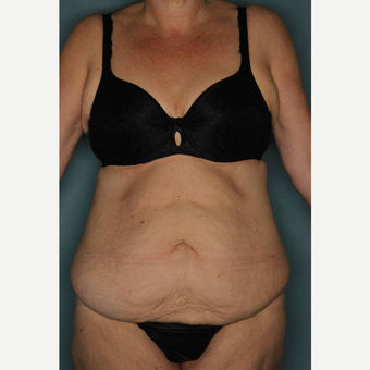 45-54 year old woman treated with Tummy Tuck before 3442425