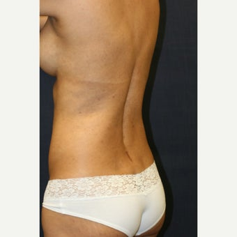 38 year old woman treated with Butt Augmentation