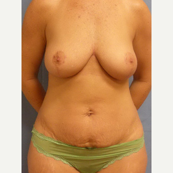 35-44 year old woman treated with Mommy Makeover before 3589191