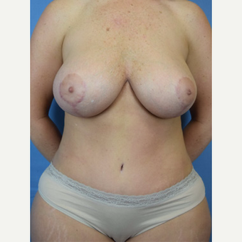 35-44 year old woman treated with Mommy Makeover after 3589191