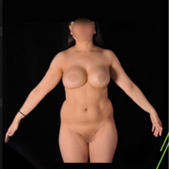 18-24 year old woman treated with Vaser Liposuction