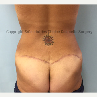 35-44 year old man treated with Butt Lift after 3182589