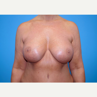 55-64 year old woman treated with Breast Implants after 3439977