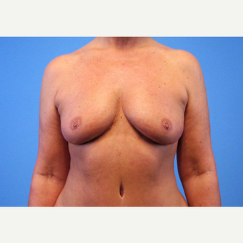 55-64 year old woman treated with Breast Implants before 3439977