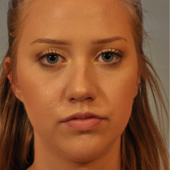 18-24 year old woman treated with Rhinoplasty before 3320806