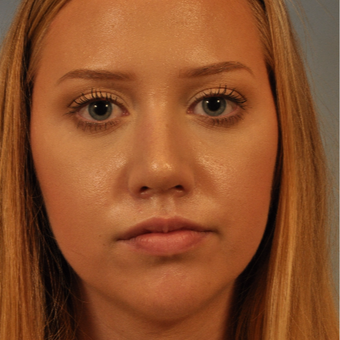 18-24 year old woman treated with Rhinoplasty after 3320806