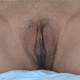 35-44 year old woman treated with Labiaplasty after 3094087