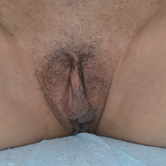 35-44 year old woman treated with Labiaplasty before 3094087