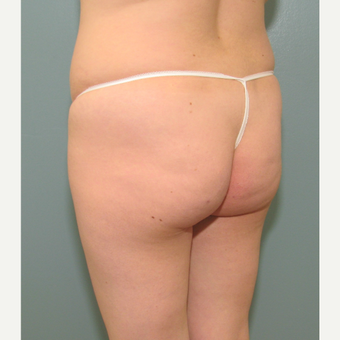 35-44 year old woman liposuction and fat transfer treated with Body Jet before 3141665
