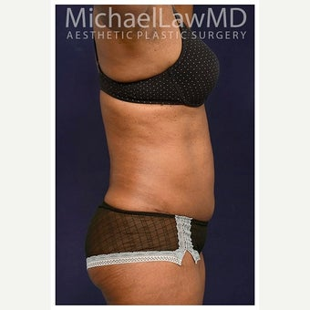 45-54 year old woman treated with Mini Tummy Tuck after 2149020
