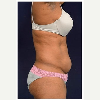 45-54 year old woman treated with Mini Tummy Tuck before 2149020