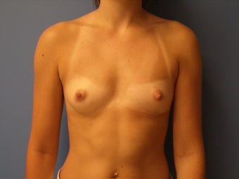 27 yo female with submuscular saline implants before 866959