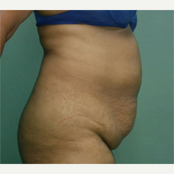 43 year old woman treated with Tummy Tuck before 3260205