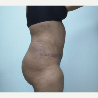 43 year old woman treated with Tummy Tuck after 3260205