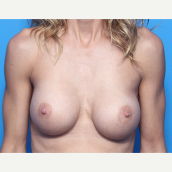 41 year old woman, Breast Augmentation with Allergan Inspira implants after 3049939