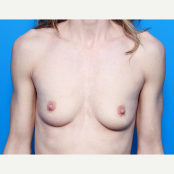 41 year old woman, Breast Augmentation with Allergan Inspira implants before 3049939
