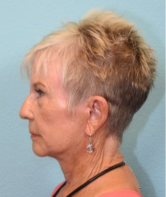 75 and up year old woman treated with Facelift after 3581444