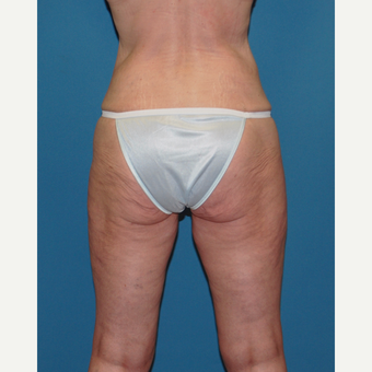 45-54 year old woman treated with Smart Lipo after 3412686