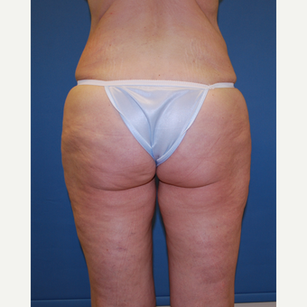 45-54 year old woman treated with Smart Lipo before 3412686